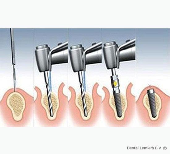 Die Behandlung mit Implantaten