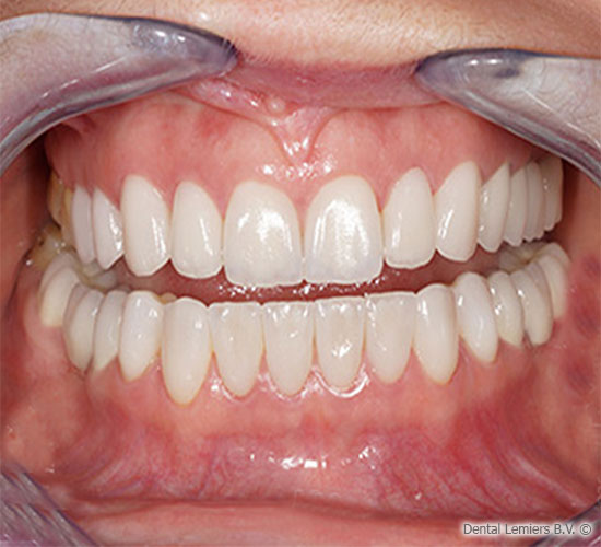 Facings after treatment