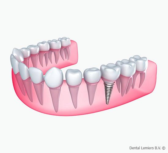 Mangel an einem Zahn