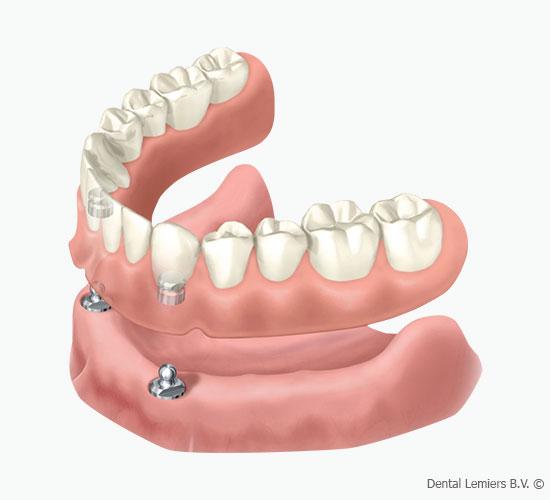 Fehlende Zähne_4 Implantate