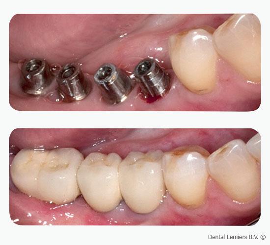 Platzierung von 4 Implantaten