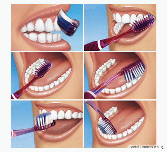 Tooth cleaning instruction_2