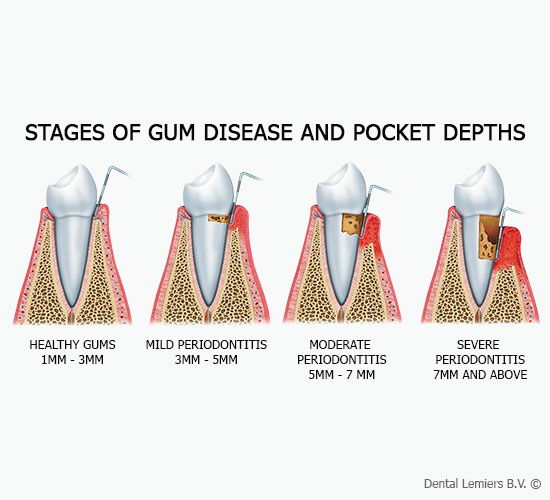 Stages of gum disease and pocket depth_1