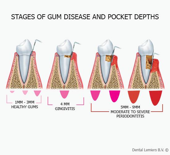 Stages of gums desease and pocket depth_2