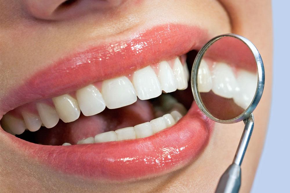 Zahnfleischerkrankungen - Parodontitis und Gingivitis