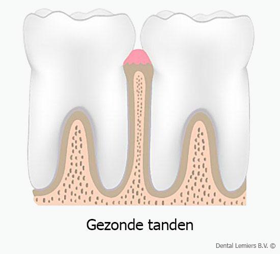 Gezonde tanden