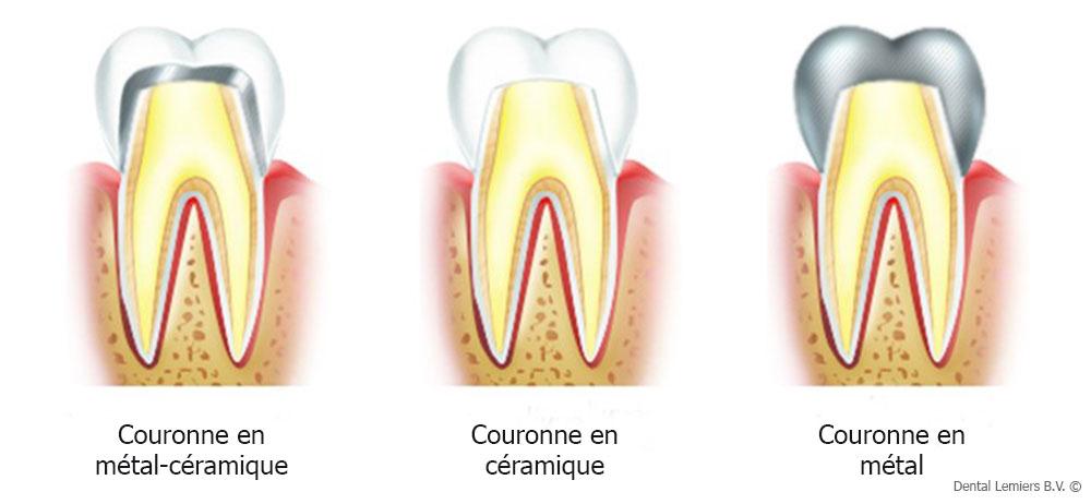 Matériaux pour la couronne dentaire