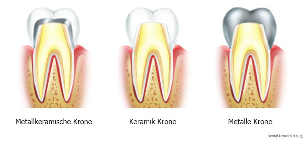 Materialien für Zahnkronen