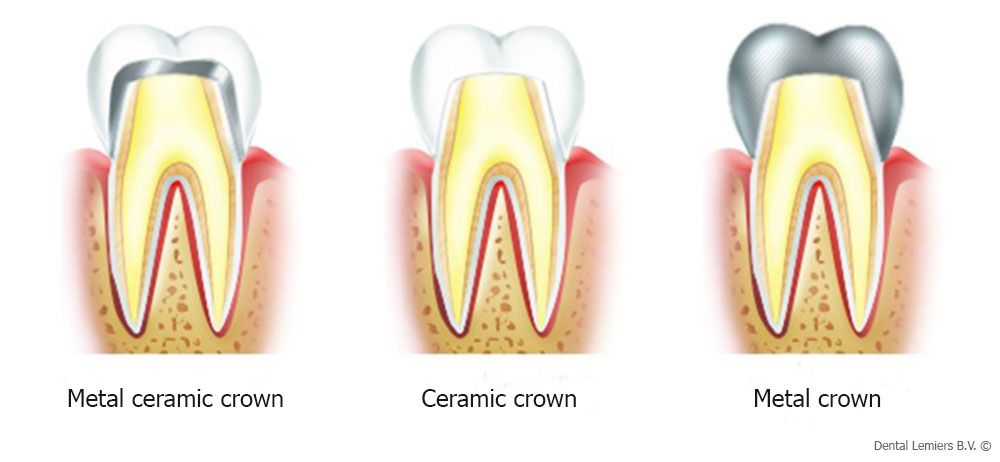 Materials for crown