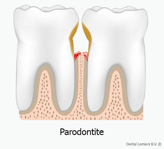 Paradontite