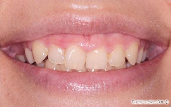 Gum smile avant