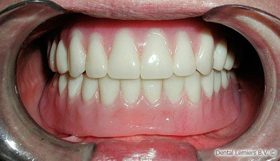 Dentures on 4 implants
