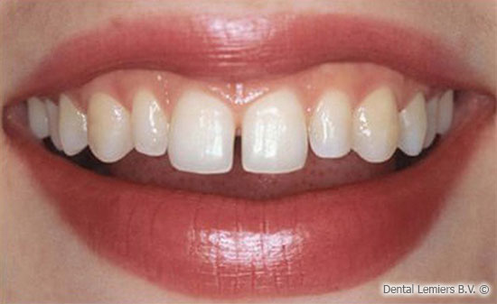 Facette dentaire avant_1