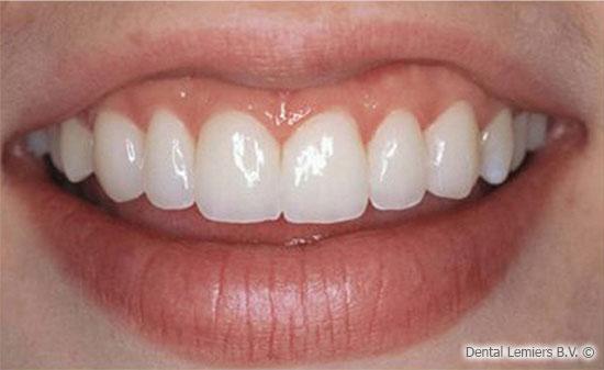 Facette dentaire après_1