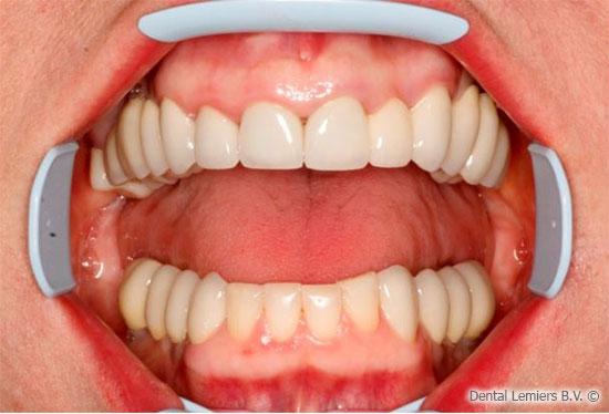 Implant dentaire après_2