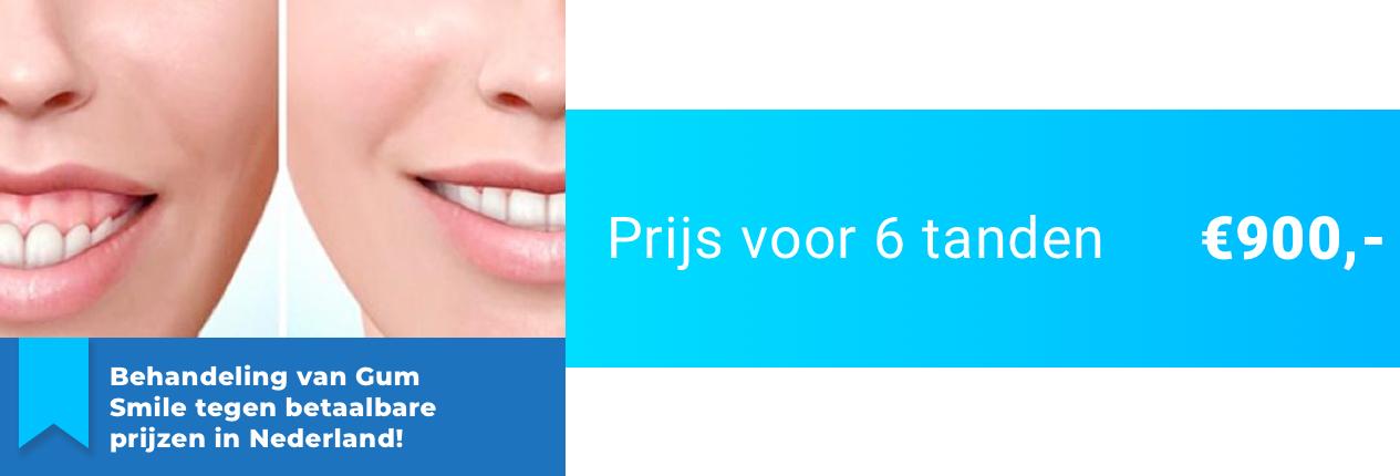 Gum Smile (Tandvleescorrectie)