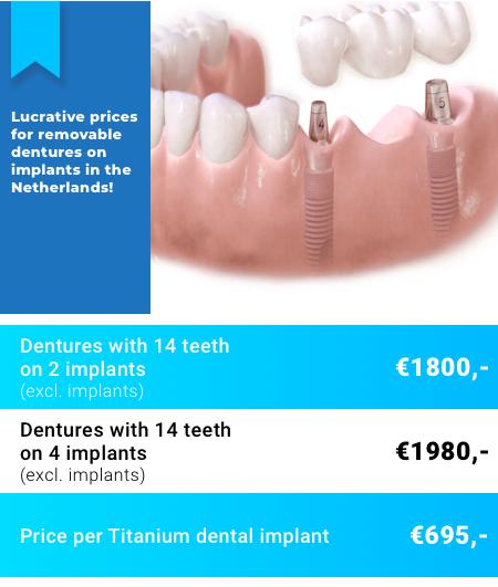 Dentures on Implants