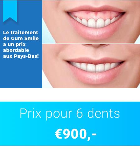 Gum-smile