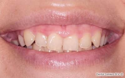 Gum smile voor
