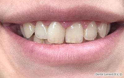 Gum smile après