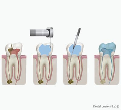 Root canal treatment_2