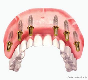 Mangel an allen Zähnen