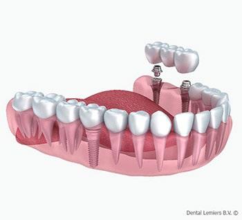 Mangel an einigen Zähnen
