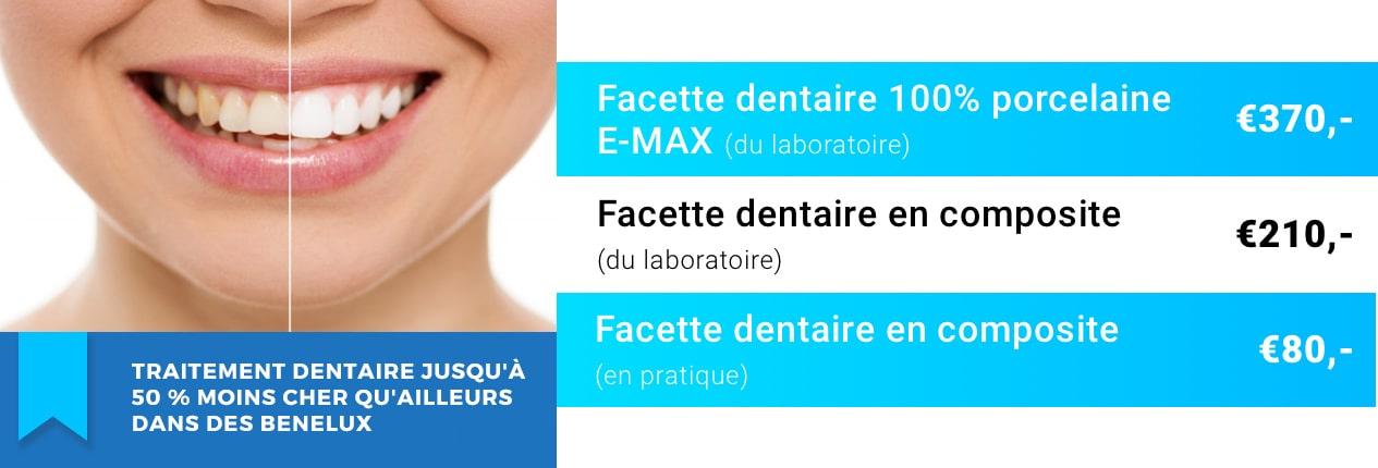 Facette dentaire