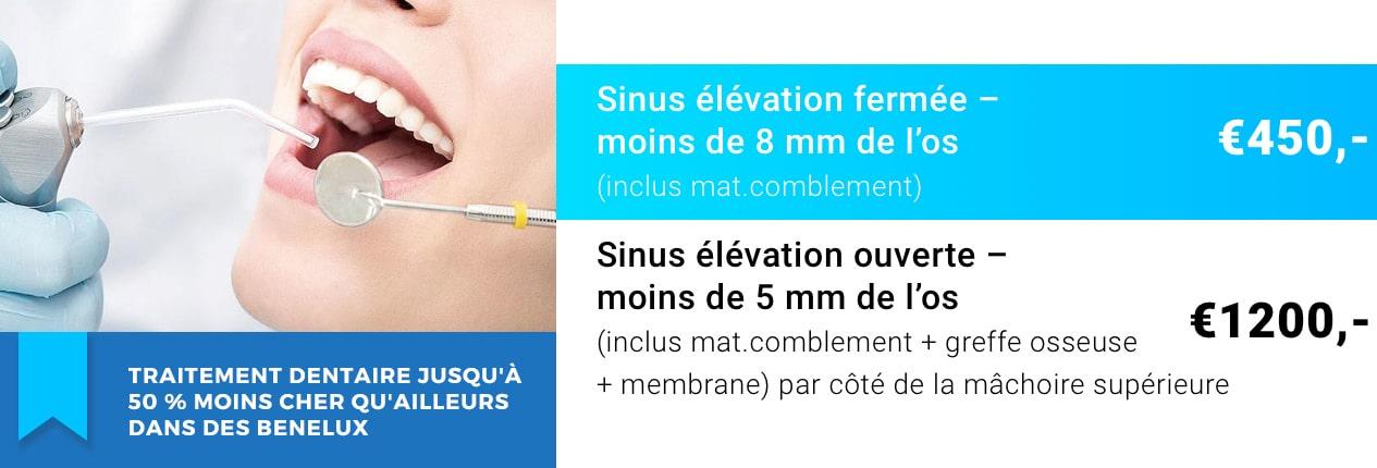 Sinus lift