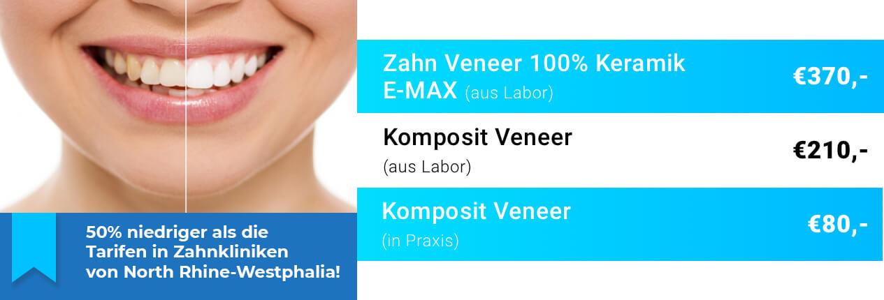 Zahn Veneers