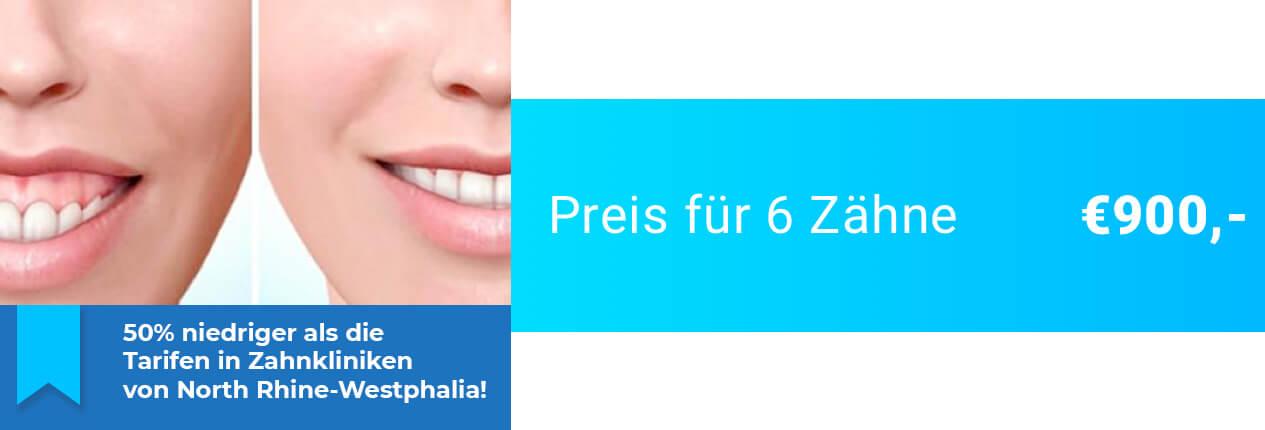 Zahnfleischlächeln