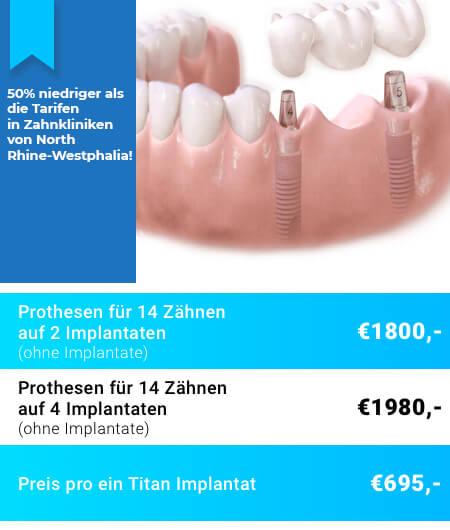 Prothesen auf Implantaten